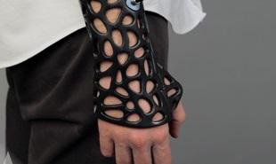 Ứng dụng máy in 3D vào lĩnh vực y tế, thay thế thạch cao