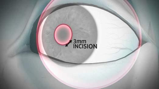 Công nghệ kính áp tròng mới cấy ghép trực tiếp vào mắt