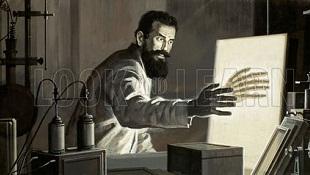 Tia X, phát minh vĩ đại của thế kỷ 19