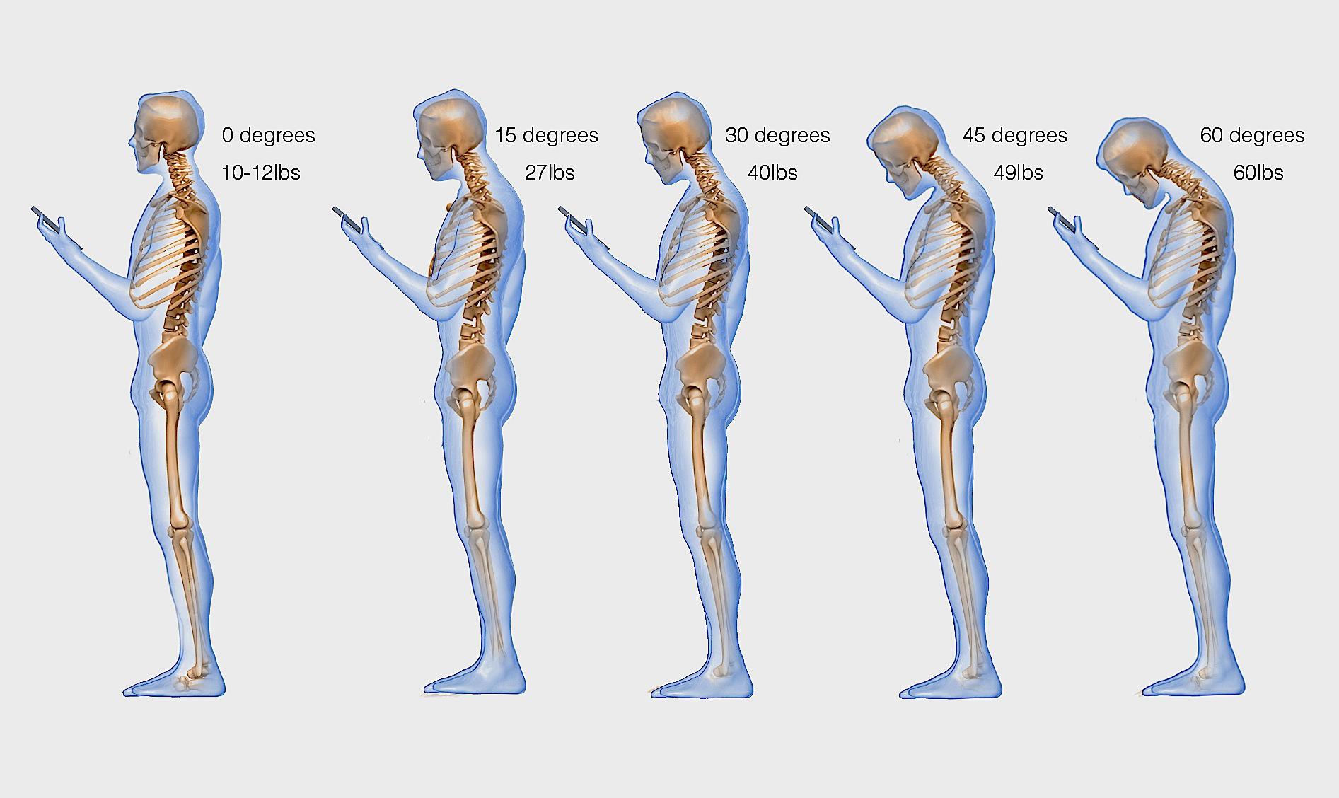 Hình ảnh xương sống của người thường xuyên nhắn tin