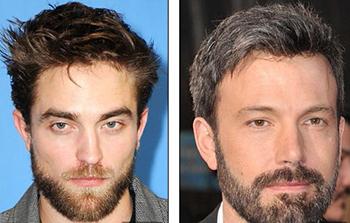 Bộ râu: ổ vi khuẩn trên mặt đàn ông
