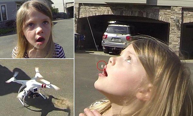Dùng drone để...nhổ răng