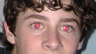 """Nguyên nhân, cách khắc phục hiệu ứng """"mắt đỏ"""""""