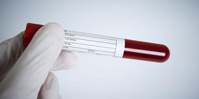 Kĩ thuật xét nghiệm mới sẽ trở thành khắc tinh của tế bào ung thư?