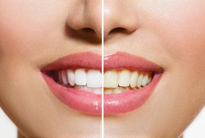 Kết quả hình ảnh cho Men răng bị ảnh hưởng như thế nào nếu uống