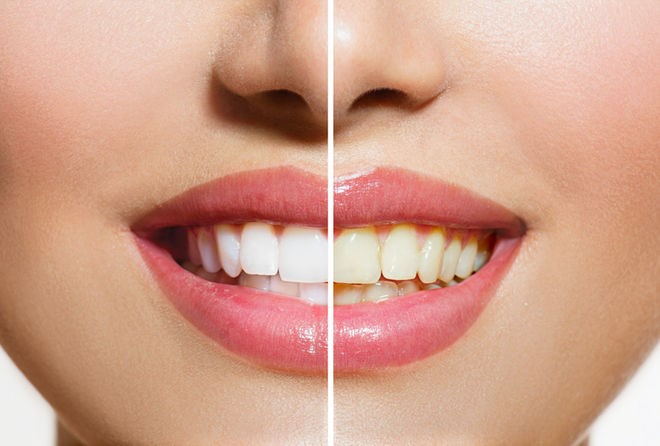 Kết quả hình ảnh cho một khi các bạn nhận ra là răng có sức ảnh hưởng
