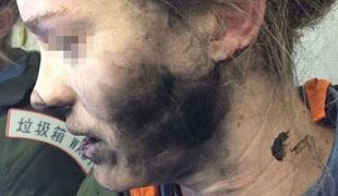 Tai nghe phát nổ trên máy bay khiến hành khách bỏng tay, đen mặt