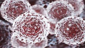 Đã có thể cấy ghép tế bào gốc từ một người khác cho bệnh nhân