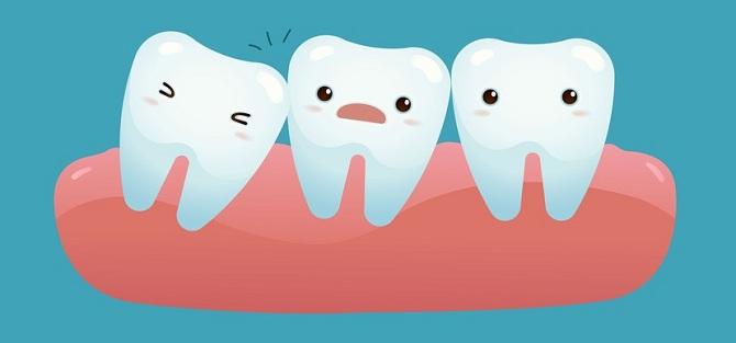 Kết quả hình ảnh cho răng khôn