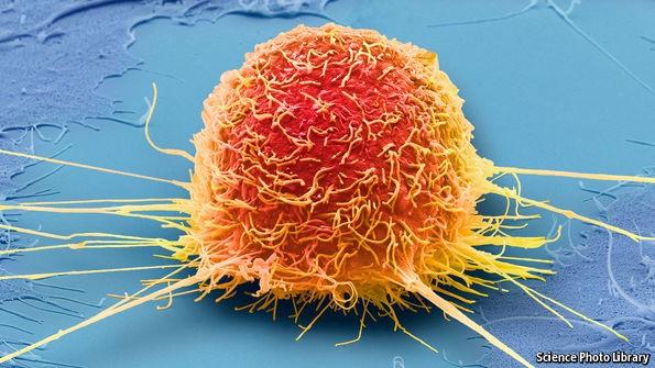 """Điều trị ung thư bằng cách... """"bỏ đói"""" tế bào ung thư"""
