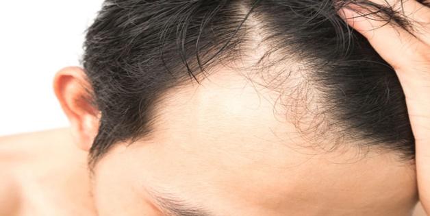 Các nhà khoa học Hàn Quốc tìm ra giải pháp trị rụng tóc hiệu quả