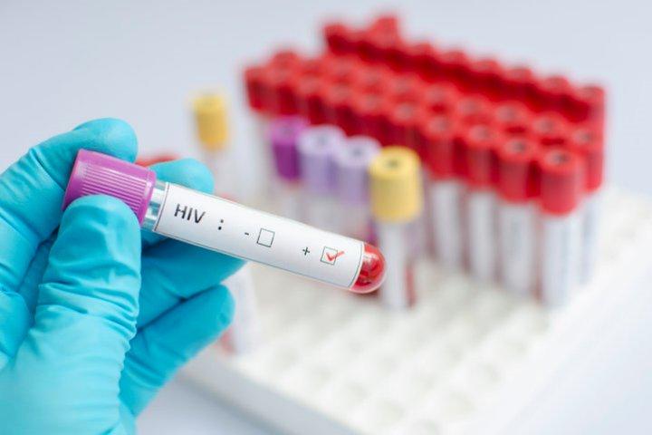Các nhà khoa học tạo ra thuốc chữa HIV kiểm soát virus, tiêu diệt các tế bào lây nhiễm trên chuột