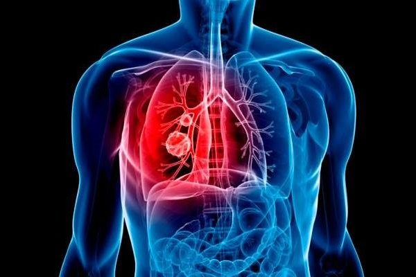Giới khoa học Úc tìm ra cách giảm tổn thương thận khi điều trị ung thư phổi