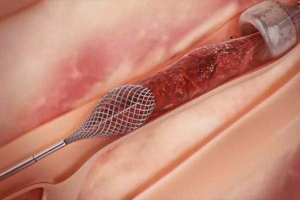 Thiết bị này sẽ dễ dàng loại bỏ các cục máu đông