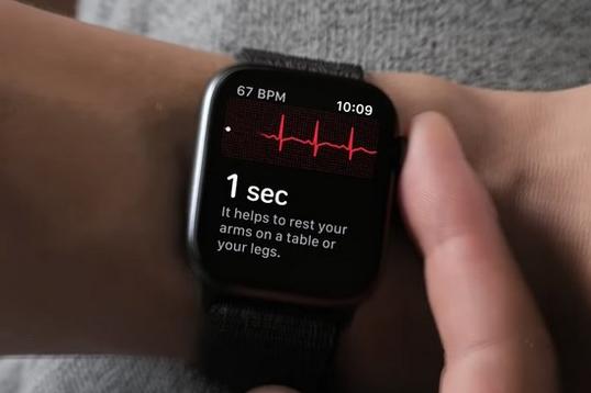 Tìm hiểu tính năng đo điện tâm đồ ECG trên Apple Watch Series 4: có tin cậy không?
