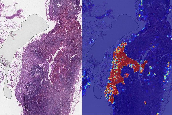 AI của Google có thể phát hiện ung thư vú di căn hiệu quả hơn nhiều so với con người