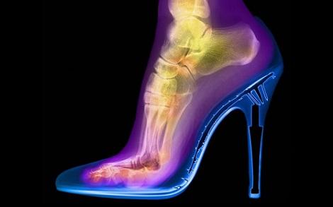 Những hình ảnh kinh ngạc được tìm thấy nhờ công nghệ chụp X-Ray