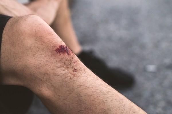 Phát hiện mới: Vết thương của bạn lành nhanh hơn vào ban ngày so với ban đêm