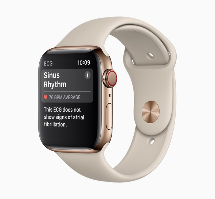 Apple Watch khiến các phòng cấp cứu bận rộn không cần thiết?