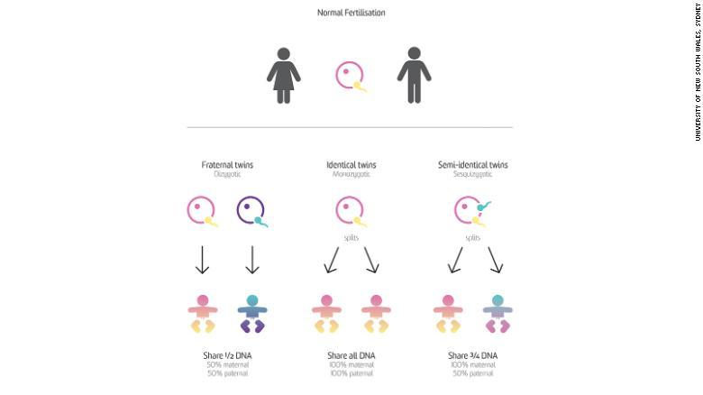 cặp sinh đôi thể cực thứ hai trên thế giới