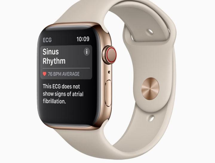 Cứ 3 người mua smartwatch, có 1 người mua Apple Watch