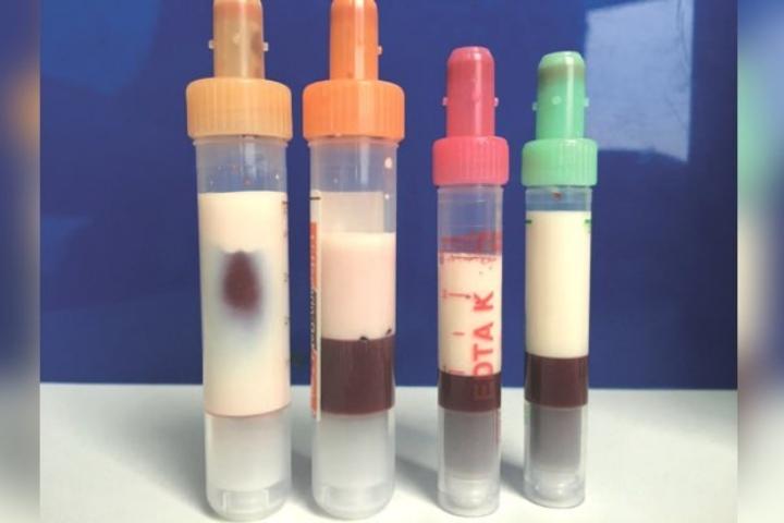 Thanh niên Đức máu nhiều mỡ đến mức trắng như sữa, làm tắc cả máy lọc huyết tương đến hai lần