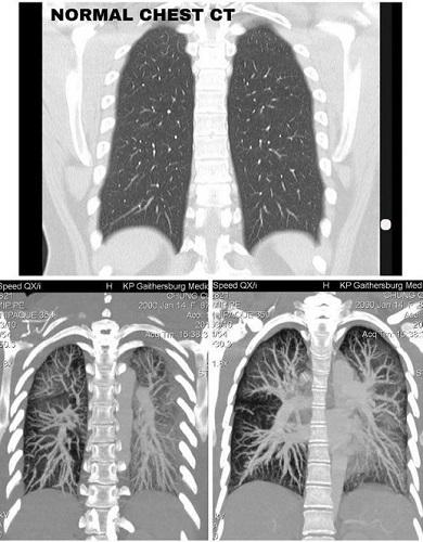 Lá phổi trắng đục của nữ sinh 19 tuổi hút thuốc lá điện tử