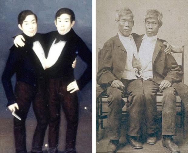 Cuộc sống kì lạ của cặp song sinh dính liền nhau nhưng vẫn mỗi người một vợ