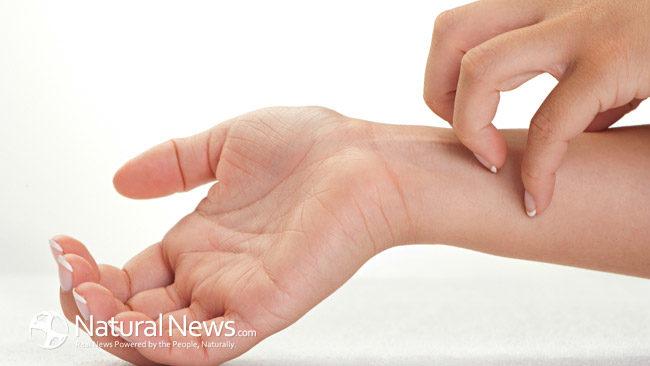 Các dấu hiệu cho thấy có thể bạn đã mắc bệnh ung thư da, cách phòng ngừa và cơ hội chữa trị