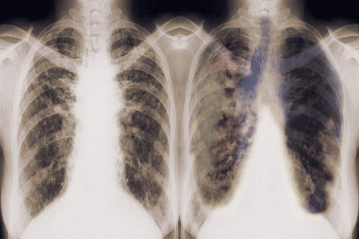 Xét nghiệm máu bằng AI có thể phát hiện ung thư phổi mà không cần chụp CT