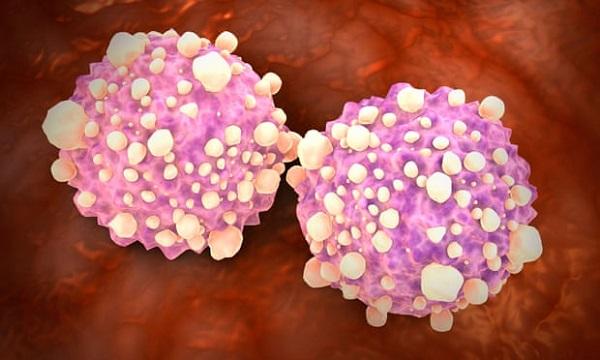 Xét nghiệm máu mới có thể phát hiện 50 loại ung thư khác nhau