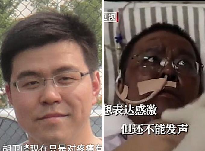 Hai bác sĩ Trung Quốc da chuyển màu do Covid-19 ảnh hưởng gan
