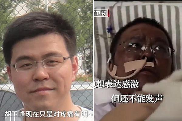 Bác sĩ Hu trước và sau khi bị biến đổi màu da