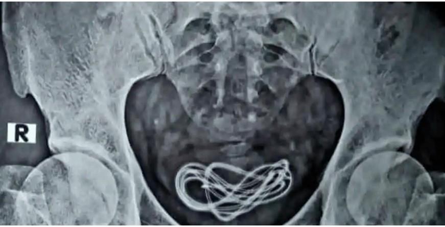 Phát hiện cáp sạc di động bên trong bàng quang một người đàn ông