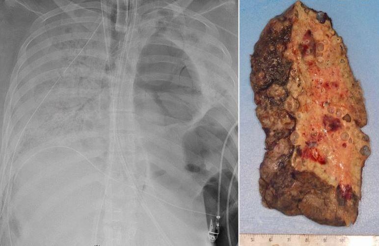 Đây là phổi bệnh nhân Mỹ bị Covid-19 tàn phá, phải ghép phổi