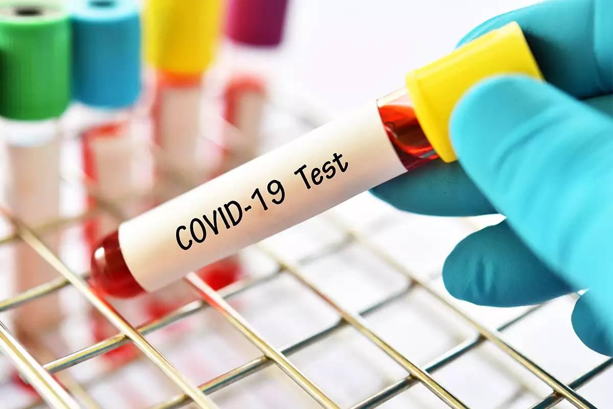 Xét nghiệm nhóm Covid-19 Đà Nẵng sắp triển khai hoạt động như thế nào?