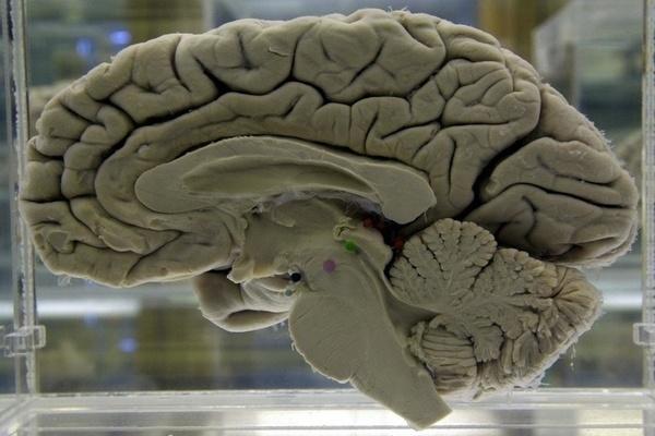 Khoa học vẫn chưa thể tìm thấy điểm khác biệt giữa não đàn ông và phụ nữ