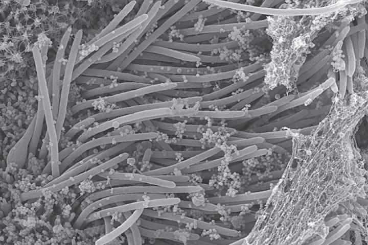 Kinh hoàng trước hình ảnh virus SARS-CoV-2 tàn phá phổi chúng ta