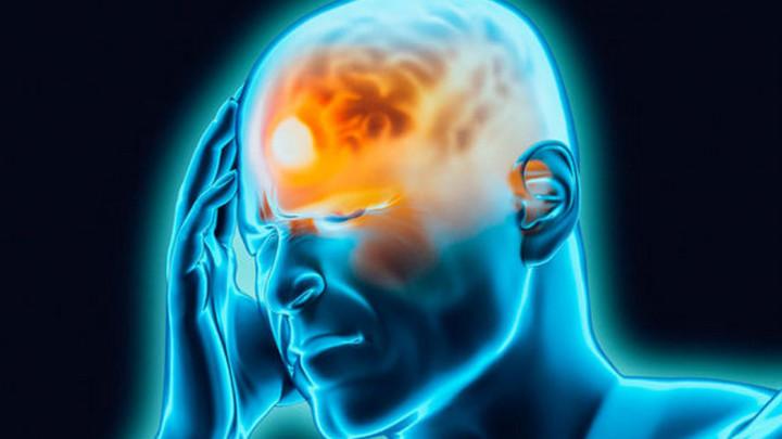 Các loại đau đầu và những cách xử lý tốt nhất khi bị đau đầu
