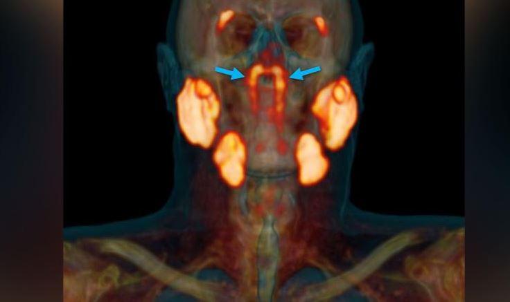 Phát hiện ra cơ quan mới có thể có trong cổ họng con người!