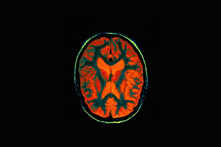 Mẹo đánh lừa bộ não giúp bạn ghi nhớ mọi thứ