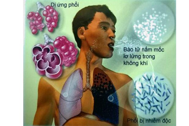 Nấm phổi là bệnh gì? Có lây không? Có chữa được không?