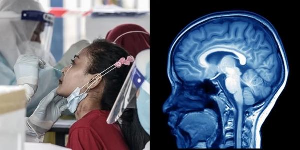 Nghiên cứu: Cứ ba người sống sót sau COVID-19 thì một người có vấn đề về sức khỏe tâm thần sau 6 tháng