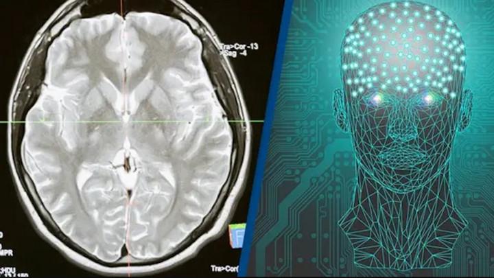 Lần đầu tiên các nhà khoa học có thể kết nối không dây giữa não bộ con người với máy tính