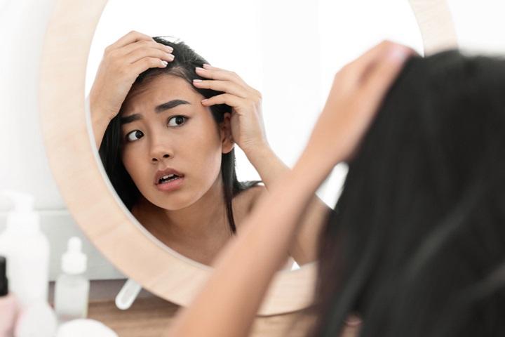 Stress và rụng tóc có quan hệ với nhau thế nào?