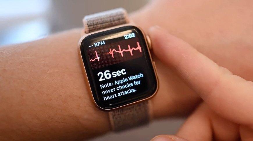 Tính năng đắt giá ECG của Apple Watch sắp cập bến Việt Nam với bản cập nhật watchOS 7.4