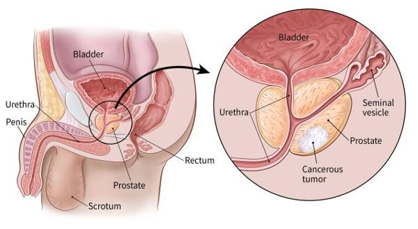 Xét nghiệm ung thư tuyến tiền liệt mới có thể giảm bớt một số xét nghiệm sinh thiết?