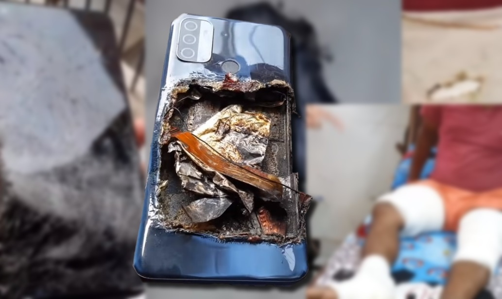 Điện thoại Oppo phát nổ khiến người dùng bỏng nặng