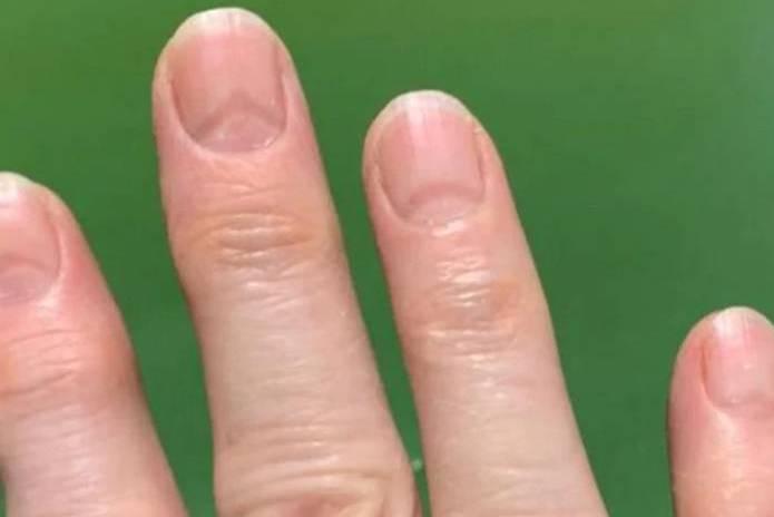 Người mắc Covid-19 để lại những dấu hiệu trên cả móng tay