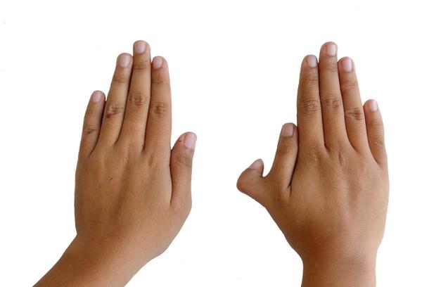 Có nhiều hơn 5 ngón tay có thể khiến bạn khéo léo hơn không?